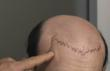 New Video Shows Dramatic Before and After of a Hair Loss Sufferer Who...