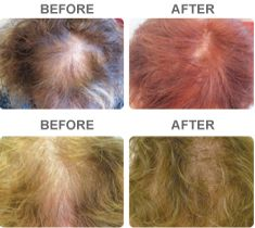 Before and After Laser Hair Growth