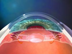 Cataract Surgery Lens Implant