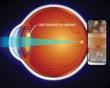 Palm Beach Cataract Surgeon