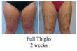 Full Thighs Liposuction