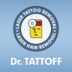 tattoo removal phoenix