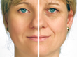 Supreme Skin Announces Adding a New Skin Brightening Procedure and a...