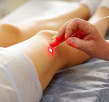 A catheter is inserted into a vein for the purpose of varicose vein treatment.