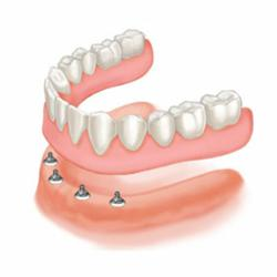 Snap-on dentures, an alternative to slippery traditional dentures, are being offered at Greenspoint Dental at a lower price this fall.