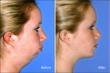 Novel Cosmetic Combination of AccuSculpt Laser Lipolysis, Botox and...