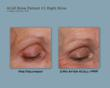 ACell+PRP Eyebrow Regeneration Study Results, right eyebrow after 2 months