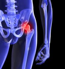 DePuy Hip Replacement: severe adverse events