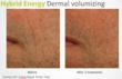 Dermal Volumizing with Hybrid Energy Technology