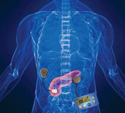Development of the Mechanical Artificial Pancreas looks promising.