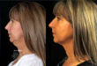 LazerLift knifeless face lift results shown on The Doctors show