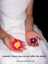 Essential tremor affects children too
