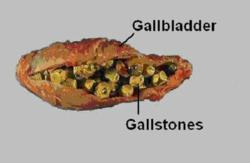 7 tips for natural gallbladder remedies presented by balanced, Sphenoid