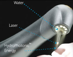 Waterlase MD™ technology being used on a tooth