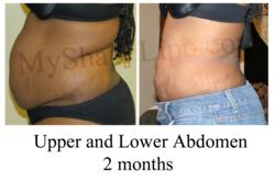 abdominal liposuction, liposuction of the abdomen, myshape lipo, liposuction las vegas, trevor schmidt