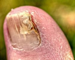 Nail Fungus Infection Relief