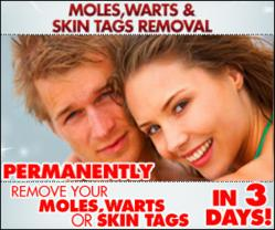 Moles Warts Removal Review