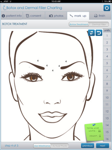 Atlanta Dental Spa Releases a New Botox and Dermal Filler Charting ...
