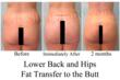 Fat Transfer To The Buttocks