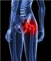Wright Profemur Hip Replacement: Adverse events