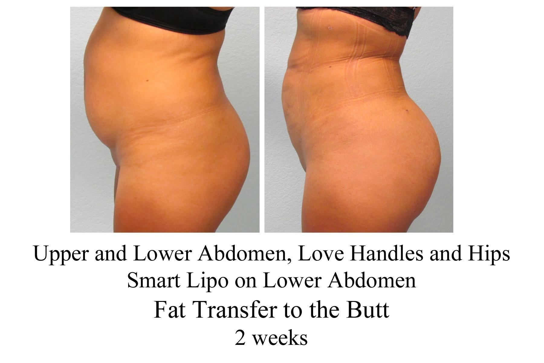 Fat Transfer Butt 94