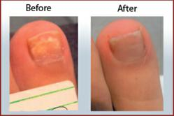 Toenail fungus laser treatment results