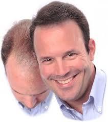 Hair Loss Spray Treatment | Hair Loss Regrowth