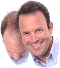 Hair Loss Spray Treatment | Hair Loss Regrowth