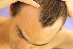 New Hair Loss Treatment | Hair Loss Cure