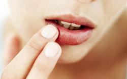 best lip balms for chapped lips