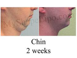 chin liposuction, double chin,