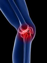 Zimmer NexGen Knee: severe complications
