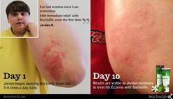 BuchulifeUSA Sport Gel+ for Eczema
