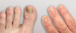 Toenail fungus infection relief