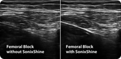 Ultrasound Needle Enhancement Technology SonixShine