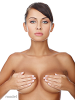 Woman with surgical breast implants