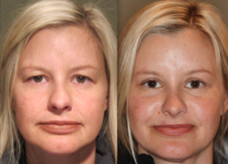 Dr. Michael McCracken's patient shows results of her upper eyelid surgery