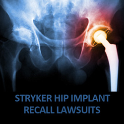 Stryker Hip Replacement Recall Lawsuits