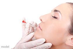 Beautiful woman receiving a lip augmentation treatment.