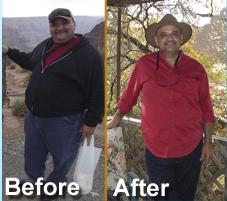 Gastric Bypass Surgery San Antonio Success Story Patient Greg