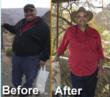 Texas Bariatric Specialists Announced Today a Break-Through Finding as...