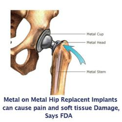 If you or someone you love have been injured by a DePuy ASR, DePuy Pinnacle, or Stryker Hip  metal on metal hip replacement implant, please visit yourlegalhelp.com, or call toll-FREE 1-800-399-0795