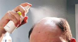 Hair Replacement Instruction: Scalp Preparation