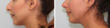 Before and after photos of a hump reduction rhinoplasty performed by Dr. Buonassisi.