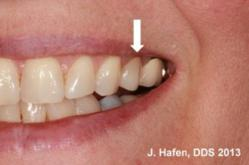 E-Max dental crown placement