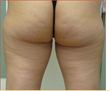 Exilis Butt Before