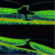 JETREA®: The first Non-surgical treatment of Vitreo-Macular Adhesion
