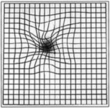 Amsler grid distortion