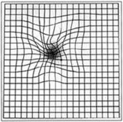 Amsler grid distortion