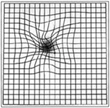 Amsler grid distortion is a common symptom of many macular diseases.